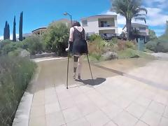 mature wife crutches with leg braces and stilettos. tube porn video